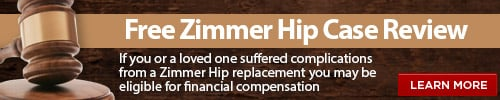 Zimmer hip lawsuit case review
